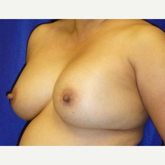 54 Year Old Female, Breast Implant Removal, No Breast Lift 1772588