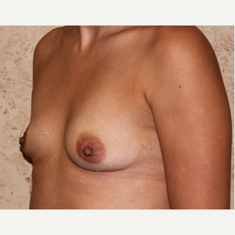 Silicone Implants - Breast Augmentation before 3325061