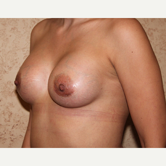 Silicone Implants - Breast Augmentation after 3325061