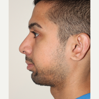 18-24 year old man treated with Chin Implant and Rhinoplasty after 3506683
