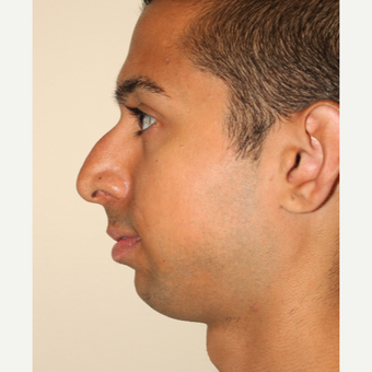 18-24 year old man treated with Chin Implant and Rhinoplasty before 3506683