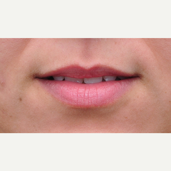 25-34 year old woman treated with Lip Augmentation before 3122294