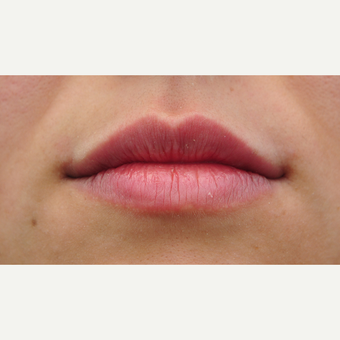 25-34 year old woman treated with Lip Augmentation after 3122294
