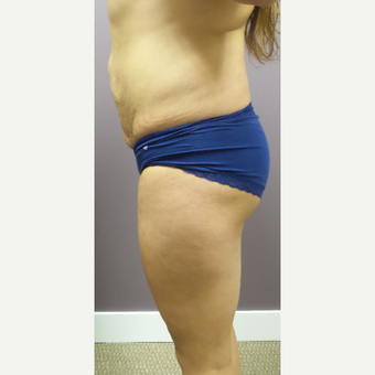 18-24 year old woman treated with Brazilian Butt Lift before 3590074