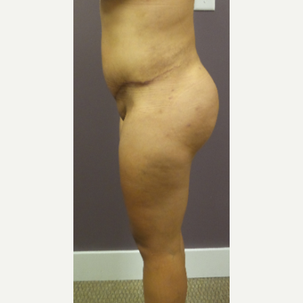 18-24 year old woman treated with Brazilian Butt Lift after 3590074