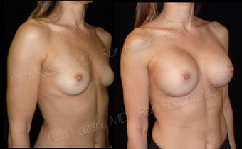 25-34 year old woman treated with Breast Augmentation before 3545560