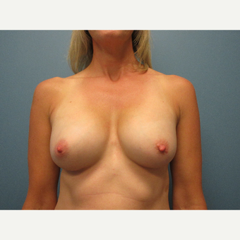 35-44 year old woman treated with Breast Augmentation after 3725812