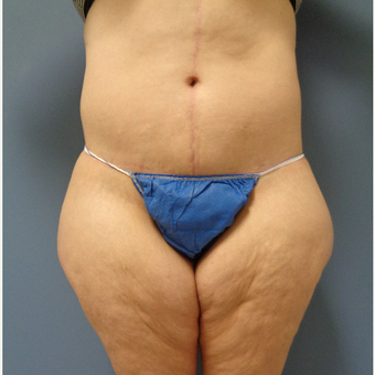 45-54 year old woman treated with Body Lift after 3747234