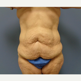 45-54 year old woman treated with Body Lift before 3747234