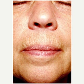 Woman treated with CO2 Laser before 2661191
