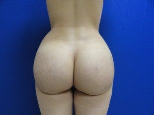 23 year old Brazilian Butt Lift after 1069866