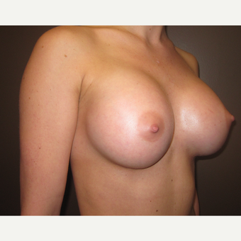 18-24 year old woman treated with Breast Implants after 3418354