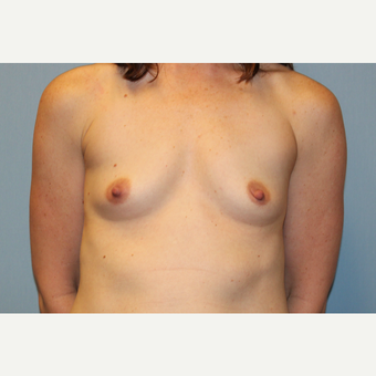 35-44 year old woman treated with Breast Augmentation before 3569664