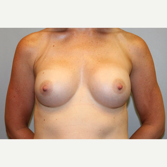 35-44 year old woman treated with Breast Augmentation after 3569664