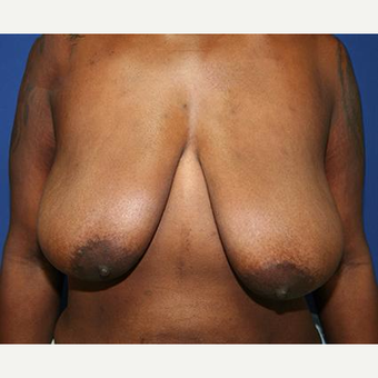 25-34 year old woman treated with Breast Lift before 3037513