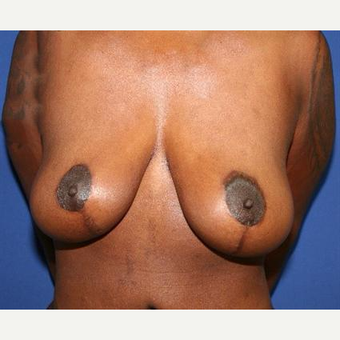 25-34 year old woman treated with Breast Lift after 3037513