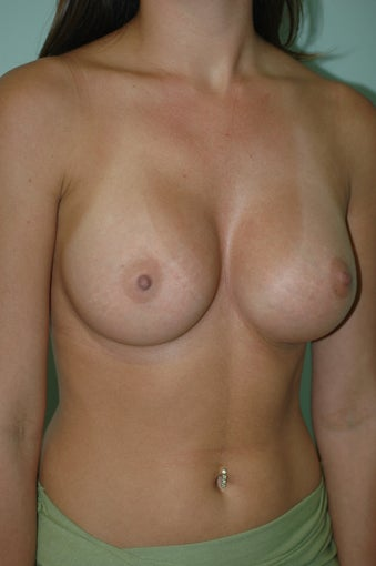 Breast Implants Silicone Gel 1186317