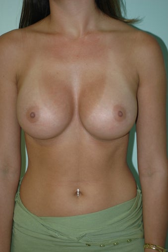 Breast Implants Silicone Gel after 1186317