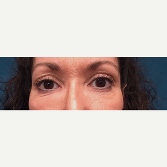 45-54 year old woman treated with Eyelid Surgery before 3319914