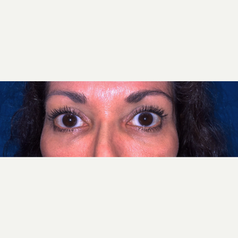 45-54 year old woman treated with Eyelid Surgery after 3319914