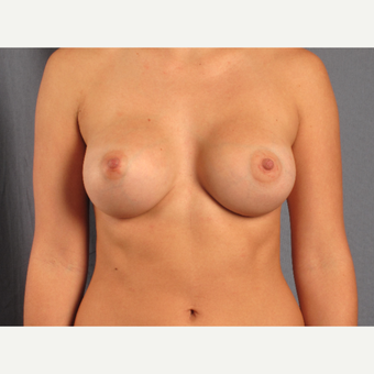 18-24 year old woman treated with Breast Augmentation after 3537702
