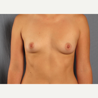 18-24 year old woman treated with Breast Augmentation before 3537702