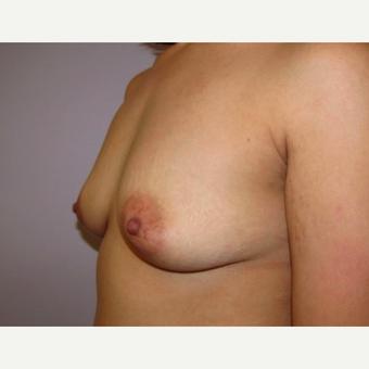 33 year old woman underwent breast augmentation with 380 cc silicone breast implants before 3467931