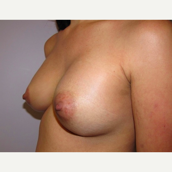 33 year old woman underwent breast augmentation with 380 cc silicone breast implants after 3467931