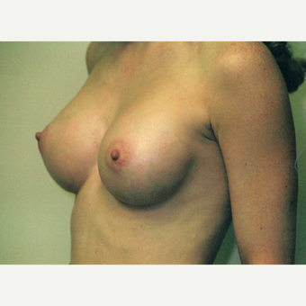 18-24 year old woman treated with Breast Implants after 3743002