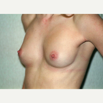 18-24 year old woman treated with Breast Implants before 3743002