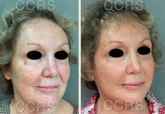 65 year old woman treated with SMAS Facelift before 3031169