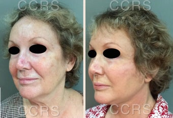 65 year old woman treated with SMAS Facelift after 3031169