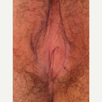 45-54 year old woman treated with Labiaplasty after 1562516