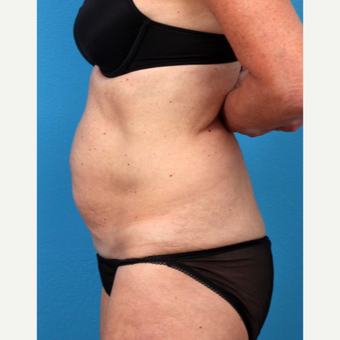 45-54 year old woman treated with Tummy Tuck before 3227373