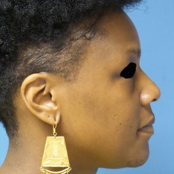 35-44 year old woman treated with African American Rhinoplasty before 2092655