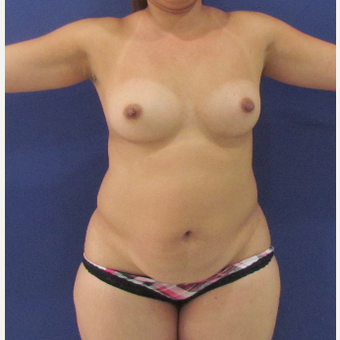 45-54 year old woman treated with Mommy Makeover before 3663974