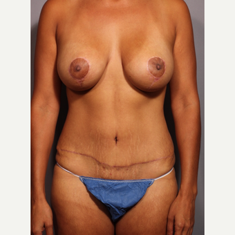35-44 year old woman treated with Mommy Makeover after 3319625