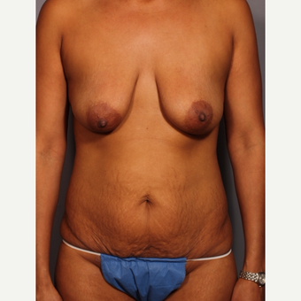 35-44 year old woman treated with Mommy Makeover before 3319625