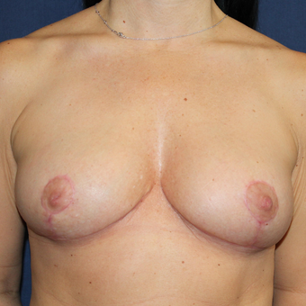 Breast Reduction or Breast Lift Was a Surgery She Always Wanted after 3778103