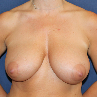 Breast Reduction or Breast Lift Was a Surgery She Always Wanted before 3778103
