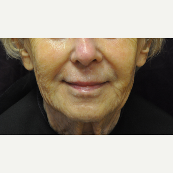 75 and up year old woman treated with Juvederm after 2881425