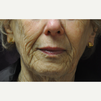 75 and up year old woman treated with Juvederm before 2881425