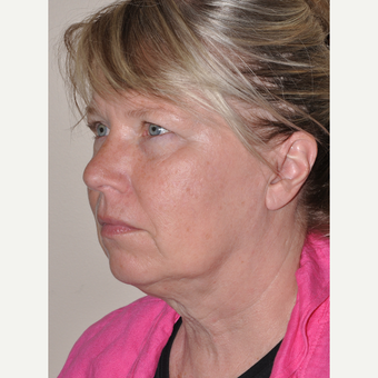 55-64 year old woman treated with Facelift before 3455590