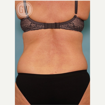 35-44 year old woman treated with Liposuction before 3016642