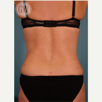 35-44 year old woman treated with Liposuction after 3016642