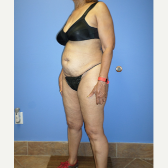 75 and up year old woman treated with Weight Loss before 3370173