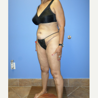 75 and up year old woman treated with Weight Loss after 3370173
