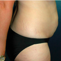 38 year old woman treated with Tummy Tuck before 3578276