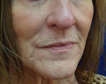 Juvederm Ultra Plus filler before 402207