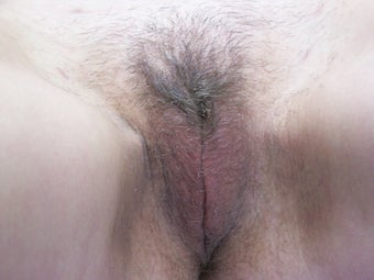 Labiaplasty after 1007121
